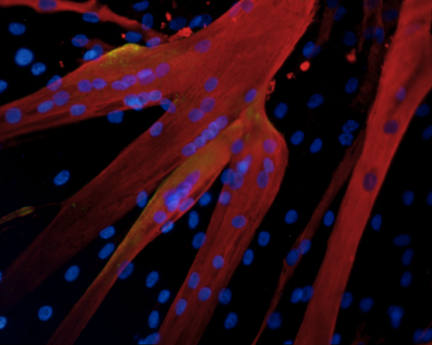Synthetic skeletal muscle acts just like human skeletal muscle. Photo from yalescientific.org